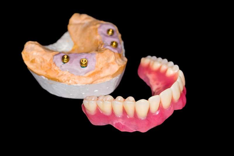 denture-dentist-in-77002